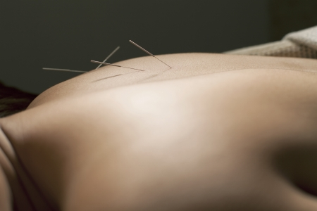 perform acupuncture spa relex thailand spa Chinese medical photo