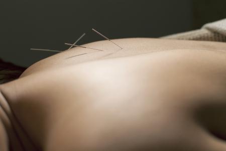 acupuntura china: realizar la acupuntura spa relex tailandia spa m�dico chino