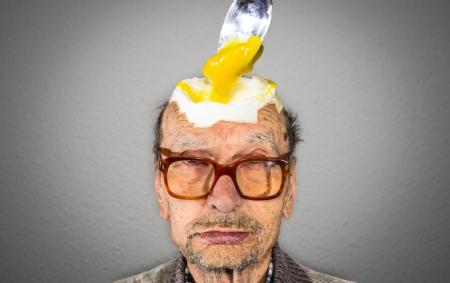 hombre calvo: cabeza de huevo Foto de archivo