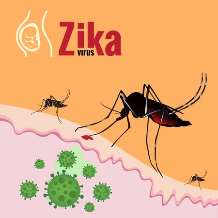 Zika Virus Outbreak und Mosquito saugen Blut auf der Haut