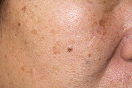 Close up Trockene Gesichtshaut mit Sommersprossen, Melasma, Akne