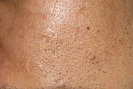 Close up Acne , Acne holes welded on face