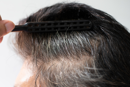 Closeup Hair grows on the head of an old woman