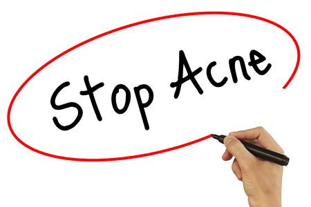 Man Hand writing Stop Acne with black marker on visual screen. Isolated on background. Business, technology, internet concept. Stock Photo