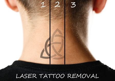 Laser tattoo removal. Close up. Isolated on white background. 版權商用圖片