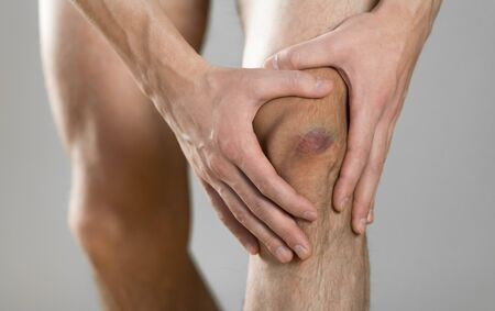 The bruise on his knee. Knee pain. The man holds his leg. Close up.