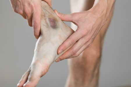 A bruise on the ankle. Scelalgia. The man holds his leg. Close up.