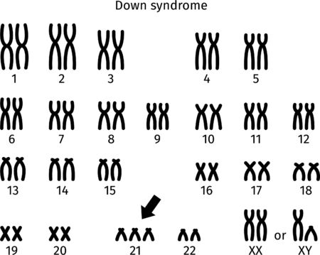 Scheme of Down syndrome karyotype of human somatic cell 47XX + 21 and 47XY + 21