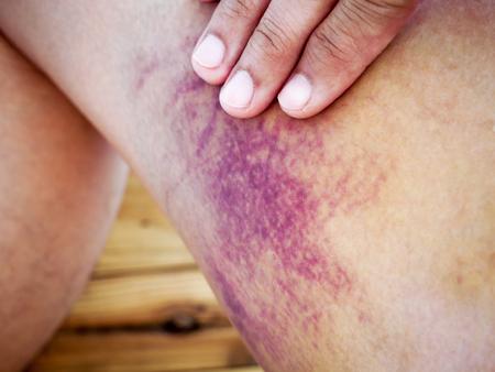 contusion: bruised skin leg