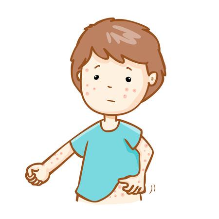 rash: hombre con alergia al problema de salud picaz�n erupci�n vectorial Vectores