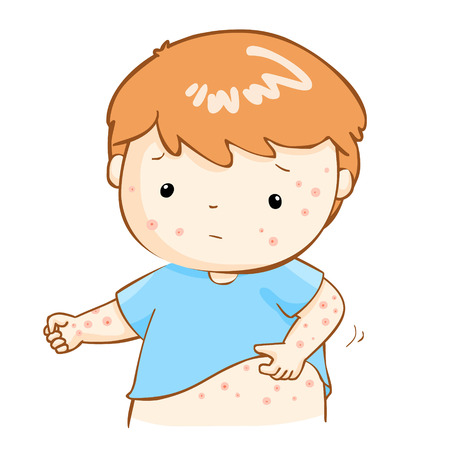 boy with health problem allergy rash itching vector