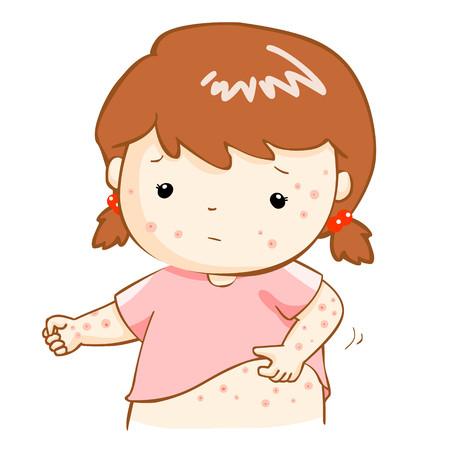 varicela: chica con alergia problema de salud picazón erupción vectorial