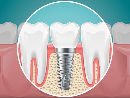 Stomatology illustrations. Dental implants and healthy teeth. Stock Illustratie