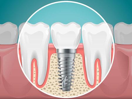 Stomatology illustrations. Dental implants and healthy teeth