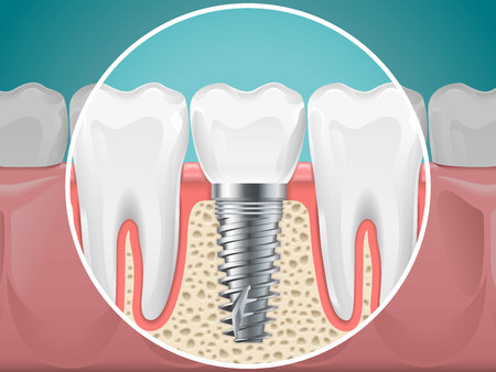 Stomatology illustrations. Dental implants and healthy teeth