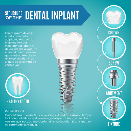 Teeth maquette. Structural elements of dental implant. Infographic for medicine poster Illustration
