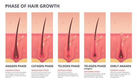 Ilustraciones de infografías médicas del ciclo de crecimiento del cabello. Imágenes vectoriales de biología humana. Banner humano de cabello, folículo de la raíz de anatomía