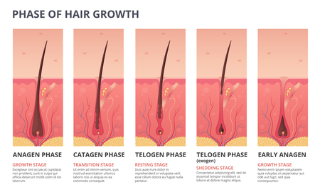 Medical infographic illustrations of hair growth cycle. Vector pictures of human biology. Hair human banner, anatomy root follicle Stock Illustratie