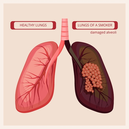 Smoker lungs. Smoke human damage lung cancer vector medical infographic pictures. Smoker lung cancer, infographic booklet tuberculosis illustration Vector Illustration