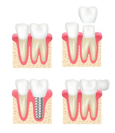 Dental crown. Tooth veneer implants healthy cavity stomatology dentist vector collection. Medical implant, dental crown for tooth illustration