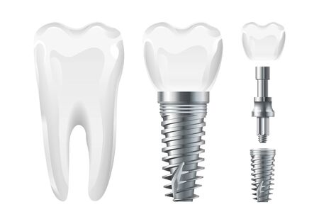 Dental surgery. Implant cut and healthy tooth. Realistic vector dental implant and crown. Stomatology elements tooth, dental care and treatment illustration