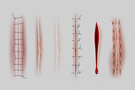 Surgical sutures. Medical closeup stitches scars and wounds decent vector realistic illustrations