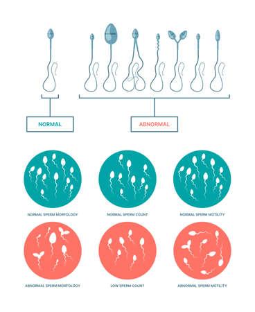 Spermogram. Medical infographic with healthy and damaged spermatozoa birth plan ovulation processes garish vector flat templates