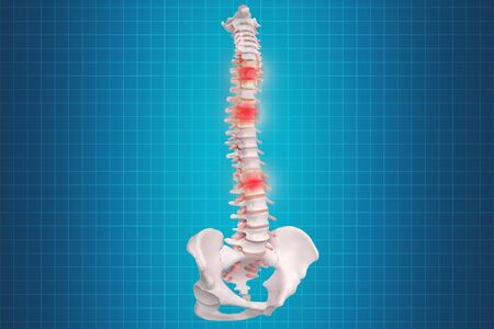 Realistic skeletal human spine and vertebral column or intervertebral discs on a dark background. Lower back pain. Vertebral column in glowing highlight as a medical health care concept.