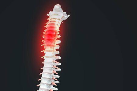 Colonne vertébrale humaine squelettique réaliste et colonne vertébrale ou disques intervertébraux sur fond sombre. Douleur dans le bas du dos. Colonne vertébrale en surbrillance rougeoyante en tant que concept de soins de santé médicaux.