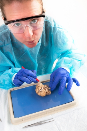 Student accidentally cuts the optic nerves of a cow Brain probably cow will go blind Stock Photo
