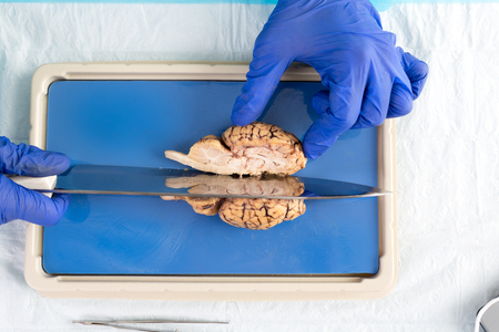 Student in a laboratory or pathologist slicing through the mid section a cow brain dissecting the brainstem and hemispheres of the cerebrum