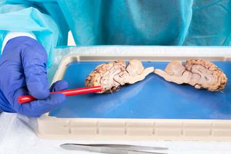 Cross-section of a cow brain in a laboratory with an anatomy student pointing with a probe to the area of the pituitary gland and hypothalamus as it lies on a dissecting tray during class