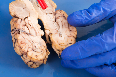 Cross-section of a cow brain showing the convoluted tissue with a probe pointing to the frontal lobe