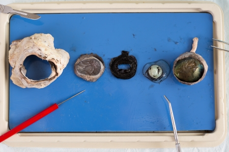 eye socket: Dissecting a sheep eye with the various tissues displayed on a tray including the eyeball, lens and surrounding muscle from the eye socket