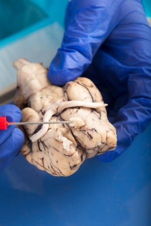 olfactory: Close up of the gloved hands of a physiology student examining a cow brain with a probe showing the olfactory bulb and optic nerves Stock Photo
