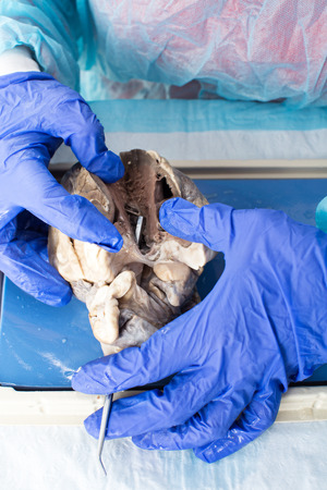 Student in medical school dissecting a heart of a sheep to study the internal structure and physiology of the tissues