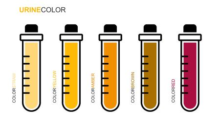 Flat linear design. Medical test tube icon. Tubes with yellow, amber, brown, red colors urinary samples, test, analysis. Vector. Illustration
