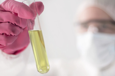 Off Focus Labrant looking at Urinal Sample in Tube 스톡 콘텐츠