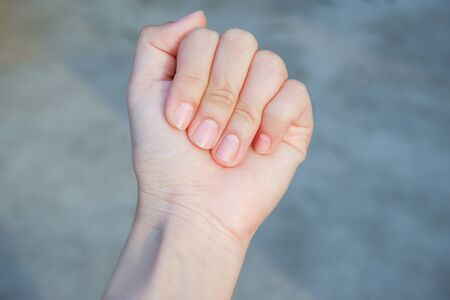 Lunula on fingernails (Half Moon) can hint at digestive problems or the effects of high blood pressure. White spots on the nails are linked to kidney function, small intestine and heart.