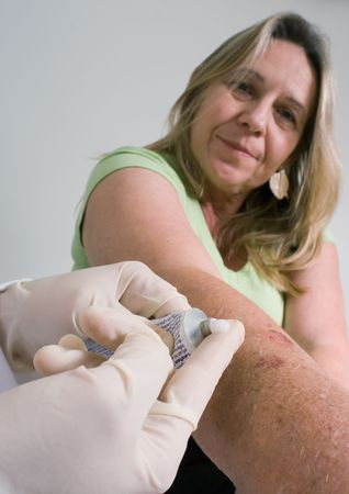 ointment: Older woman watching as a doctor is about to apply some ointment to her arm Stock Photo