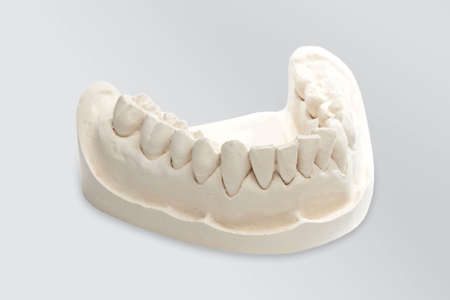 White mold dental of plaster, dental mold with a prosthesis, Dental Stone. Stock fotó