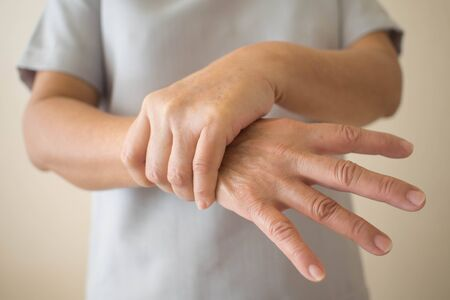 Parkinson's disease symptoms. Close up of tremor (shaking) hands of Middle-aged women patient with Parkinson's disease. Mental health and neurological disorders. 版權商用圖片
