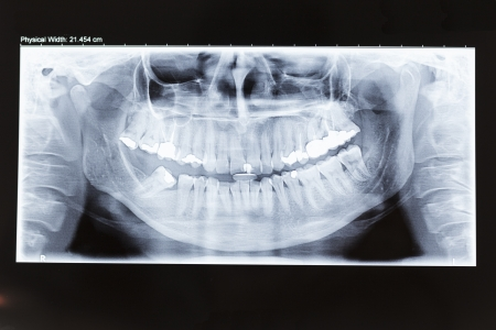 Human dental panoramic x-ray photo photo