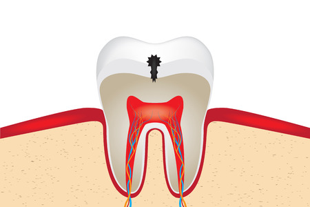 pulpitis: Crop of tooth with caries.