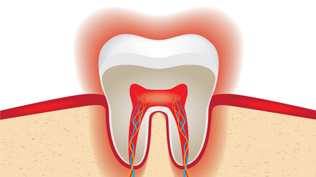 enamel: pulsation of sensitive tooth enamel.
