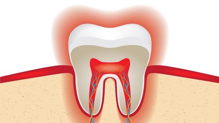 pulpitis: pulsation of sensitive tooth enamel.