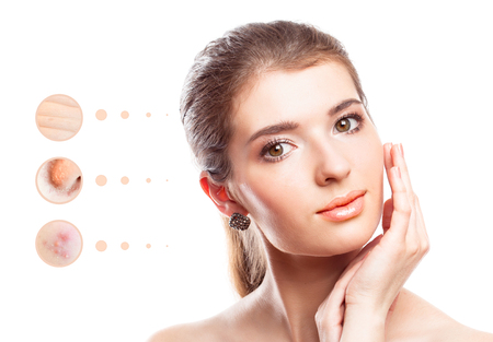 Skin problem of woman face