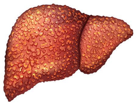 patients: Liver patients with hepatitis. Liver is sick person. Cirrhosis of liver. Repercussion alcoholism. Isolated on white vector illustration Illustration