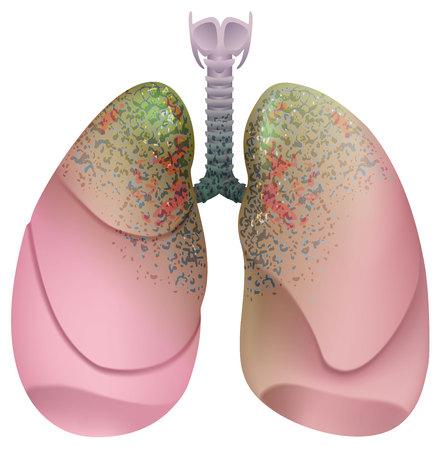 Fumante do sistema respiratório. Câncer de pulmão. Isolado na ilustração branca