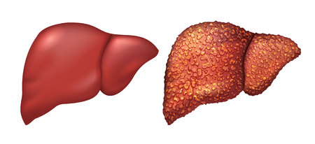 Liver of healthy person. Liver patients with hepatitis. Liver is sick person. Cirrhosis of liver. Repercussion alcoholism. Isolated on white illustration